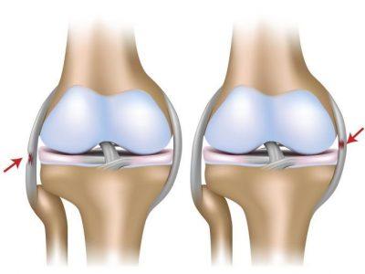 Kniepijn voetstuk podotherapie