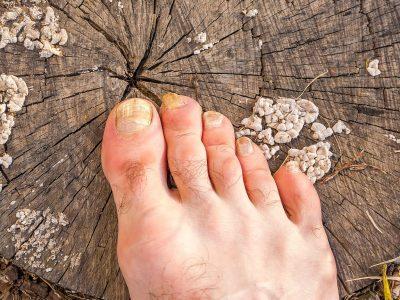 Schimmelinfectie aan je tenen?